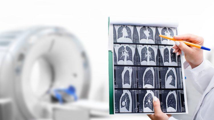 КТ-снимки легких и рак